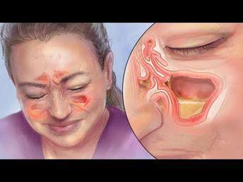 Diese einfache Methode hilft innerhalb kürzester Zeit bei einer Nasennebenhöhlenentzündung! - YouTube