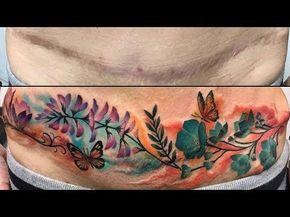 Tatuajes para cubrir cicatrices: Ideas y consejos - YouTube Tattoos To Cover Scars, Scar Tattoo, Cover Tattoo, Belly Tattoos, Tatoos, Tummy Tuck Scars, Sweet Tattoos, Tummy Tucks, Body Art