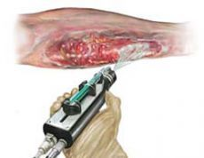 An amazing video about a gun that sprays skin stem cells onto burn victims. It gives a turnaround time to treatment from a week to grow layers of skin, to a few hours to prepare the spray. Watch the video, its phenomenal. Don't worry, the picture is just an artist's rendition.