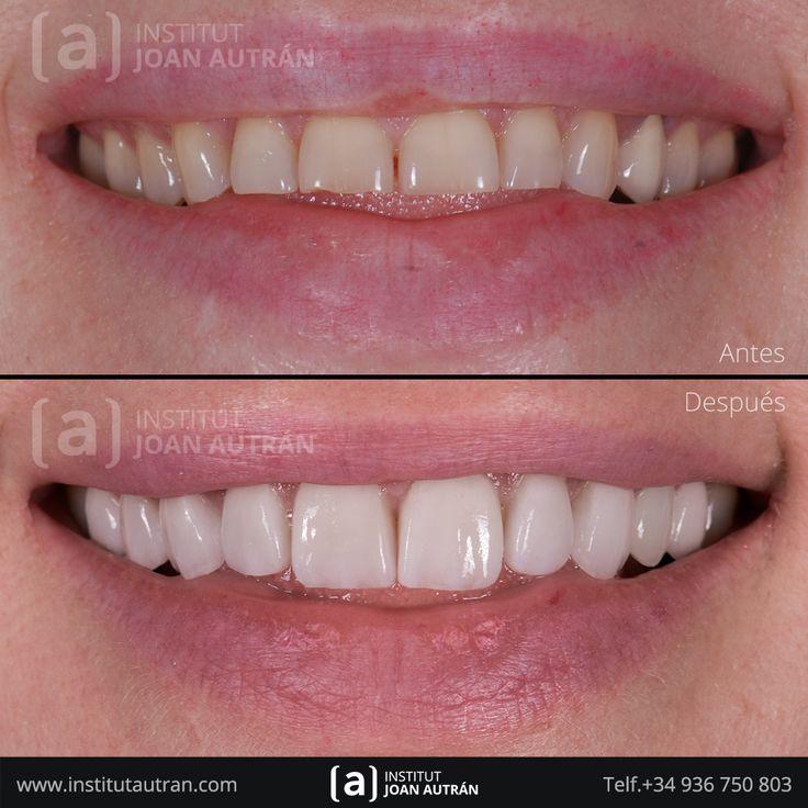 Carillas sin tallado Top Smile® para solucionar un caso de dientes desgastados por bruxismo. La paciente vuelve a sonreír!