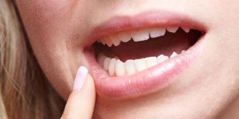 Müder Teint, Pickel und eingerissene Mundwinkel: Schnelle Hilfe bei Beauty-Pannen