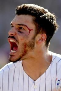 Walkoff gives Arenado cycle, lifts Rockies  -    Hitting feat was eighth in Colorado history  -  June 18, 2017:        The Rockies; bloodied Nolan Arenado celebrates hitting a 3-RBI walk-off home run in the ninth inning against the Giants at Coors Field on Sunday in