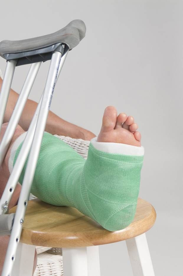 How to treat a sprained ankle!