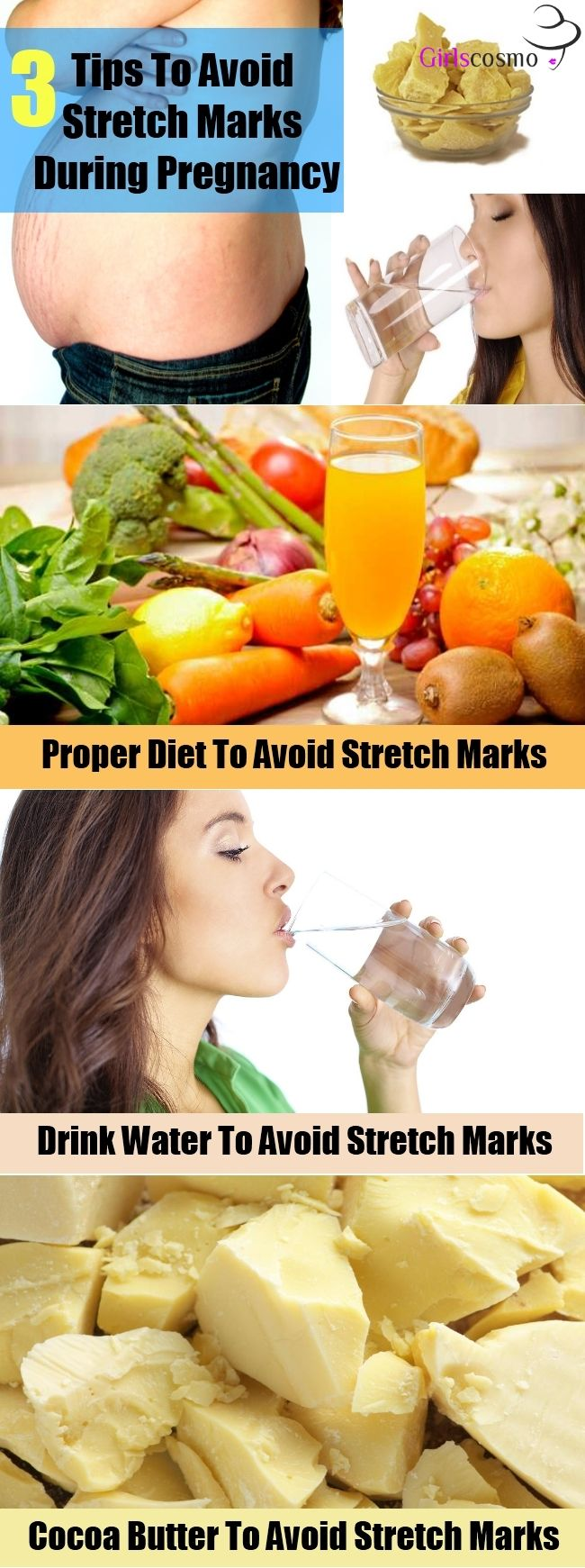 Tips To Prevent Stretch Marks During Pregnancy