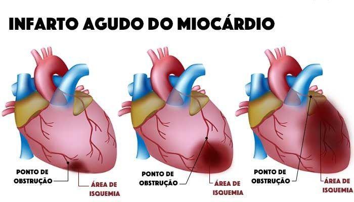 Os sintomas de infarto: A dor no peito não é o único sinal   Os problemas cardíacos são os maiores responsáveis por mortes em todo o mundo. No Brasil são mais de 300 mil casos a cada an…