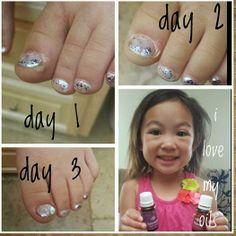 Essential Oils to heal my baby's infected toe