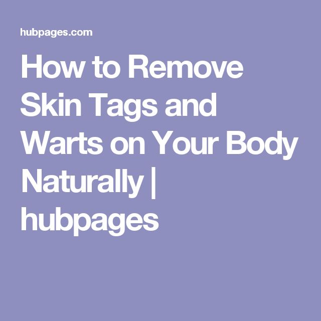 How to Remove Skin Tags and Warts on Your Body Naturally | hubpages