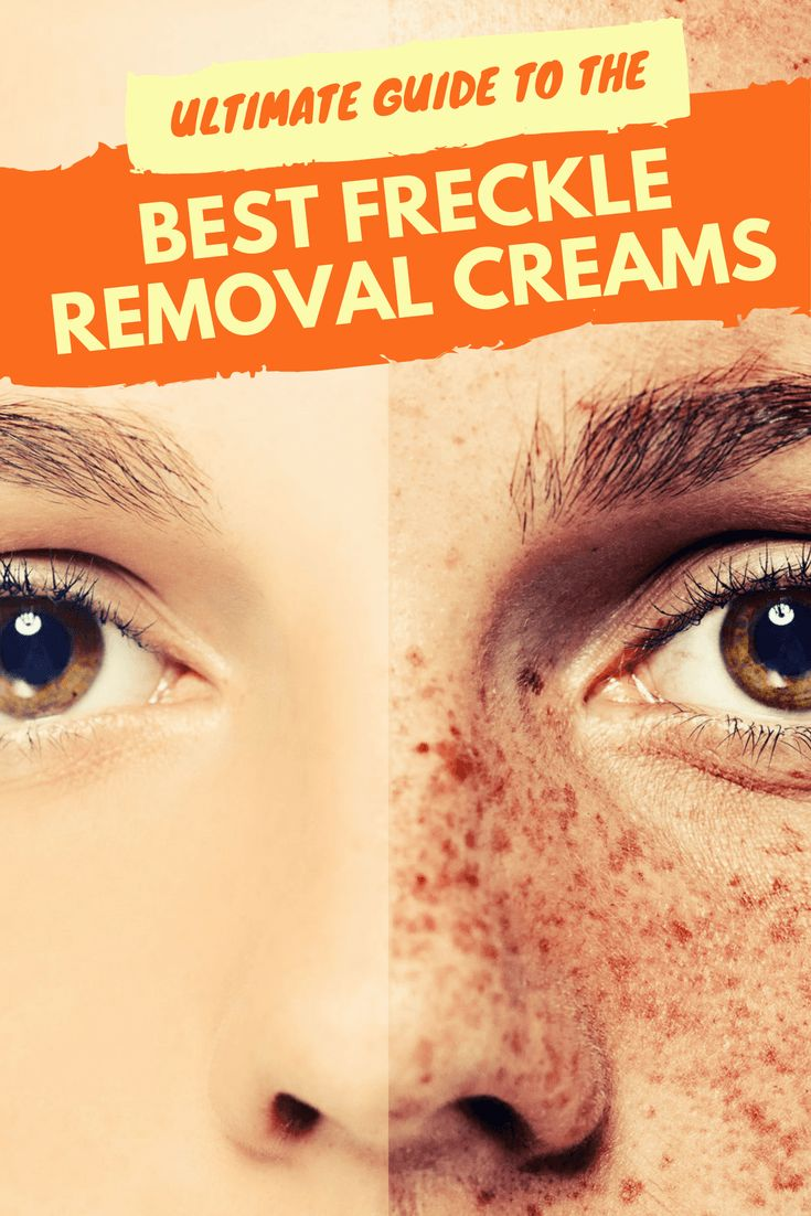 Interested in shopping for a solution to remove freckles?  Keep reading to explore the list of the best freckle removal creams and what you need to know about them.