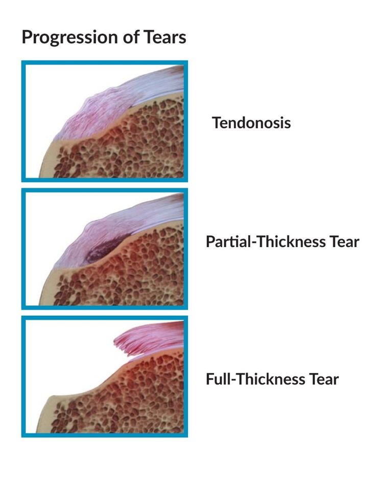 Rotator Cuff Tendinosis                                                                                                                                                                                 More