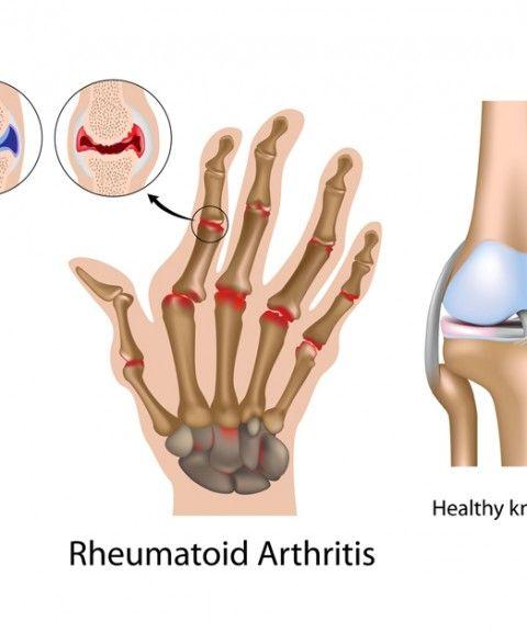 paddison program for rheumatoid arthritis pdf