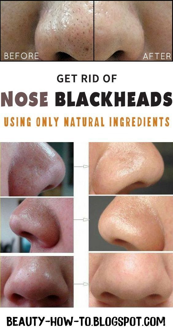 what works best to get rid of blackheads