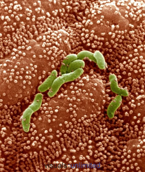 These Helicobacter pylori bacteria (formerly Campylobacter) on human stomach cells cause certain types of stomach ulcers and gastritis. SEM X12,000 at 5X7 inches