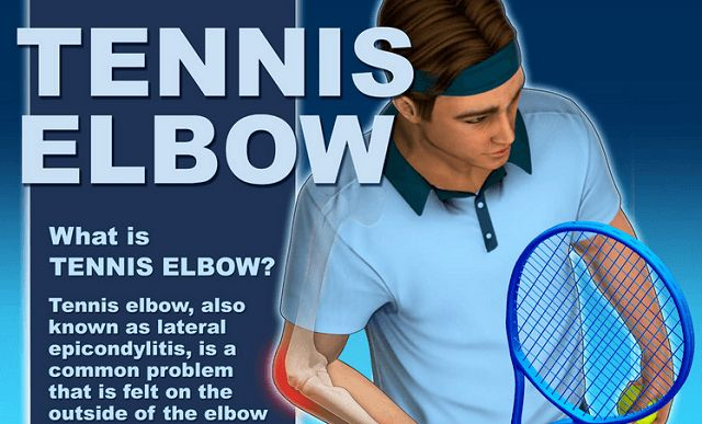 Tennis elbow, also known as lateral epicondylitis, occurs when pain is felt on the outside of the elbow near the bony knob. Learn more about symptoms of this condition, who is at risk, and prevention tips.