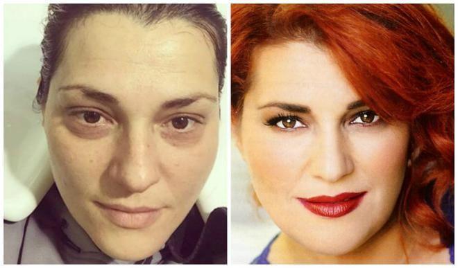 Αίσθηση προκάλεσε πριν λίγες μέρες, ένα post της Ελεονώρας Μελέτη με μια φωτογραφία κολάζ, που έδειχνε το πρόσωπό της πριν και μετά το μακι...
