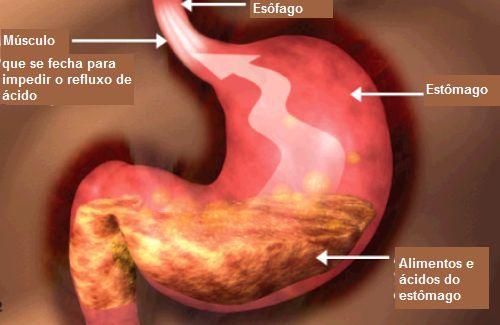 O refluxo gastroesofágico é uma doença que afeta muitas pessoas ao comerem. O esôfago não é um simples músculo...