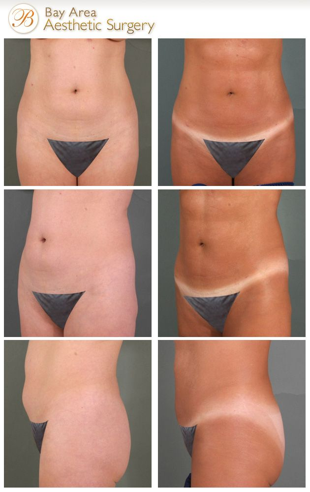 VASER liposelection Before and After Photos