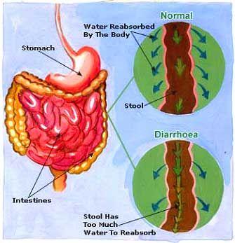 Diarrhoea: Incidence, Causes, Symptoms, Diagnosis, and Treatments #Diarrhoea #CausesofDiarrhoea #DehydrationTreatmentforofDiarrhoea #DiagnosisforDiarrhoea #GeneralMeasures #IncidenceRateofDiarrhoea #SignsandSymptomsofDiarrhoea #TreatmentforDiarrhoea #homehealthbeauty Read More: http://homehealthbeauty.in/health/diarrhoea/