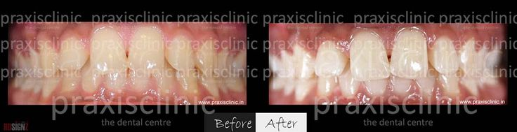 tooth whitening in cosmetic dentistry essay Dr priyank mathur offers the latest teeth whitening services using pola office plus bleaching system and the safest technologies available today for teeth whitening in pune, india.
