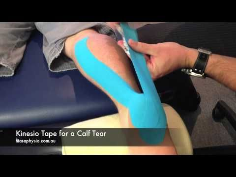 How to Tape a Calf Tear / Strain with Kinesio Tape | Sports Strapping Tape.  Good to know, just in case.