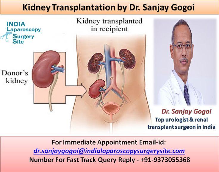 Kidney Transplantation by Dr. Sanjay Gogoi