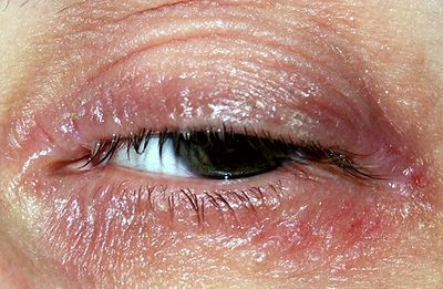 Natural Treatment For Eczema Around Eyes
