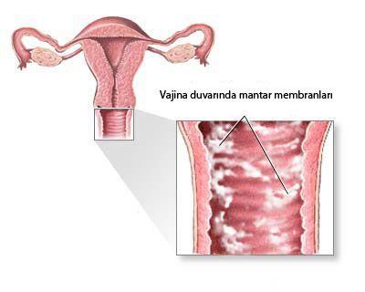 Vajinal Mantar Enfeksiyonları (Mikotik vajinit) Vajinal mantar enfeksiyonları ilk kez 1849 yılında gebe bir kadında ...