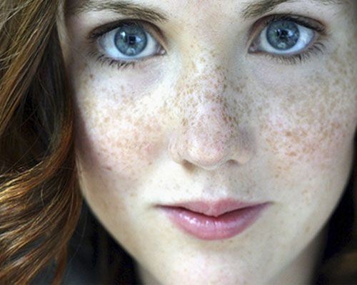 Freckles Removal Cream by Dr Khurram. If you want freckles removal naturally to feel better about yourself then use this simple homemade tips