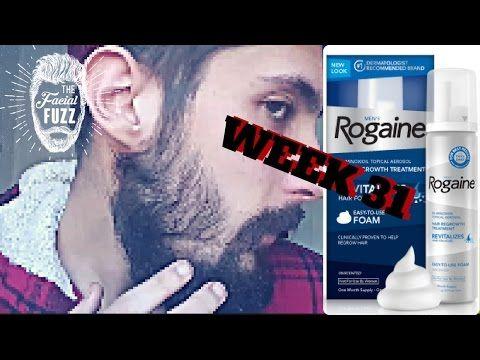 Minoxidil Beard | 7 MONTHS!!! | Week 31 | Minoxidil 5% for Beard Growth | #FacialFuzzFridays - YouTube