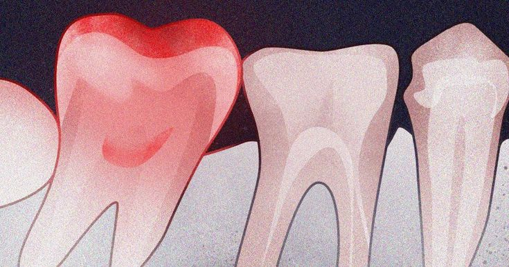 A variety of problems can cause mouth pain but theyre
