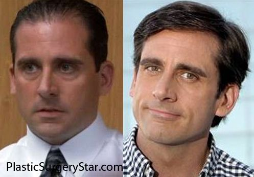 Steve Carell Hairpiece Amp Jaw Implants Hair Implants