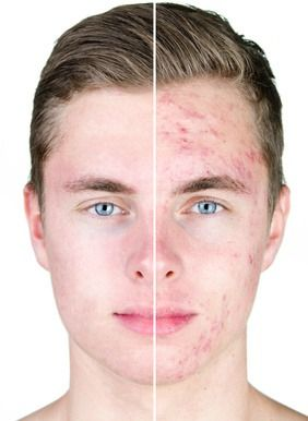 25+ best ideas about Cystic acne treatment on Pinterest | Natural ...