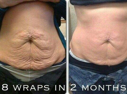 You can get 8 wraps right now thru May 26th for just $99!! $200 Value! Find out how by emailing me @ kay51084.kh@gmail.com or visit www.getyourskinnywraphere.com #body #wraps #tummy #tighten #tone #firm #mommy #business #money #athome