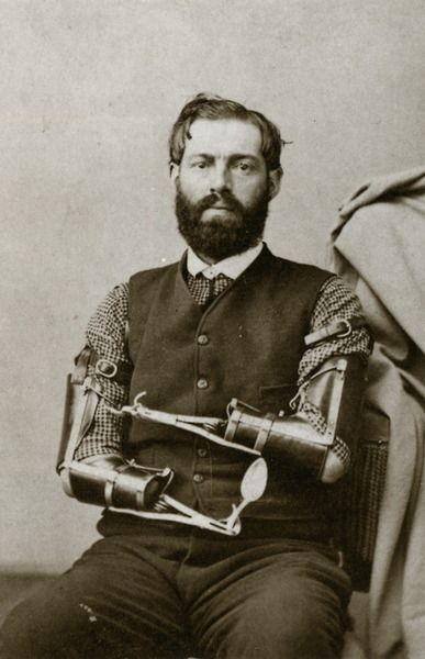 Samuel Decker was a Civil War veteran who built his own prosthetics after losing his arms in combat.