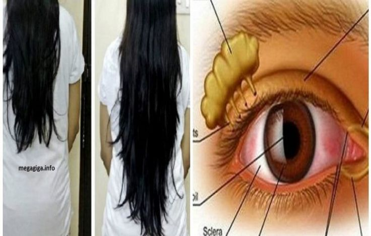 STRONG HAIR AND VISION: Just Three Tablespoons A Day And You Will Witness A Miracle! (Recipe) » Healthy Life Healthy Food