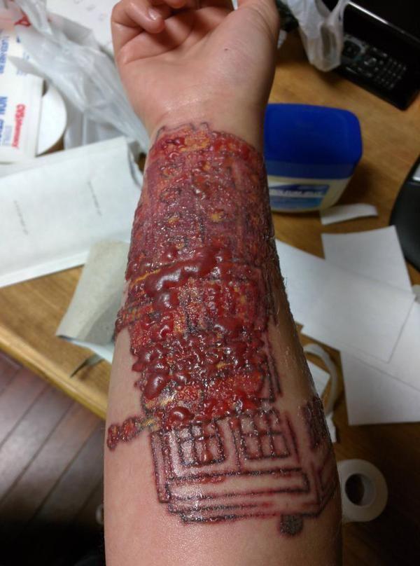 Лазерное удаление татуировки.  p.s. Поэтому думай, что бьешь