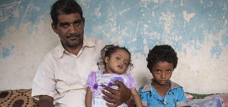 Millionen Kinder leiden an Hunger – Ihre Weihnachtsspende wird dringend benötigt