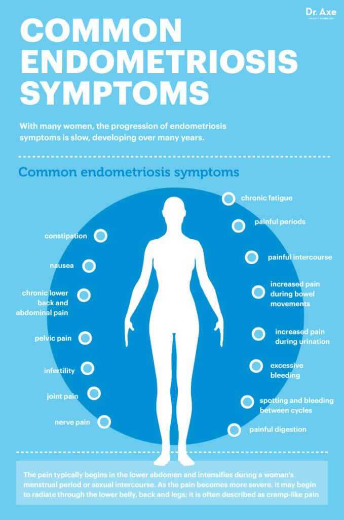 Common endometriosis symptoms - Dr. Axe