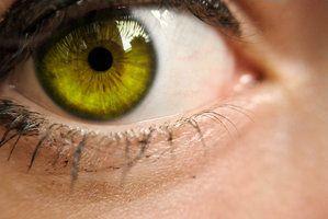 yellow eyes - photo #22