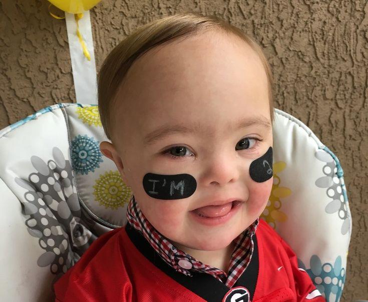 Письмо моему сыну с синдромом Дауна на его второй день рожденья