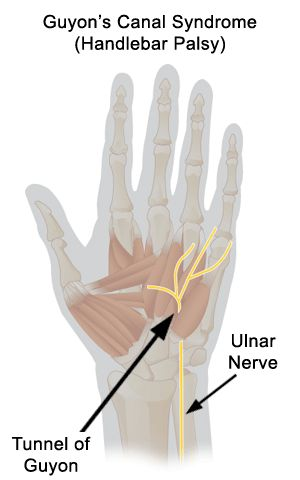 Guyon's Canal Syndrome from stretching or compressing the ulnar nerve