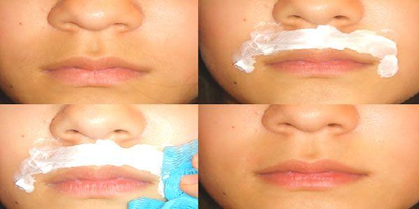 """Remédio Caseiro para depilar o buço para sempre! Diga adeus ao """"bigodinho"""""""
