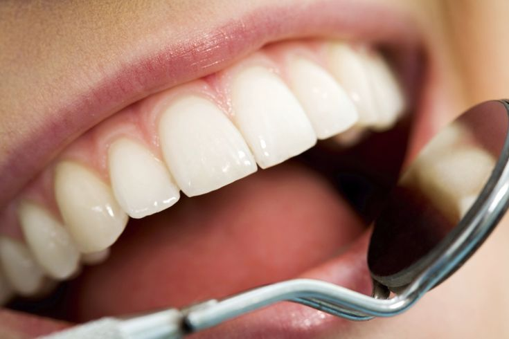 Did you know...Roughly 78 percent of Americans have had at least one cavity by age 17?
