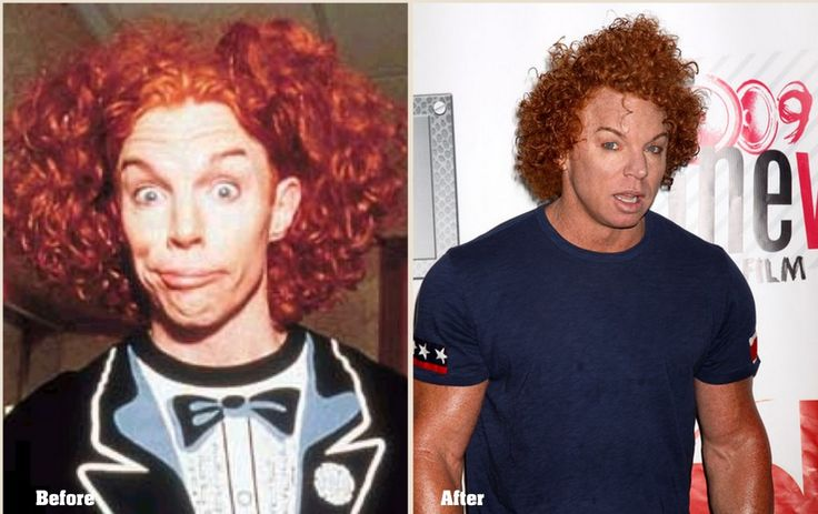 Carrot Top Plastic surgery Before and After Latest Photos 2013-2014