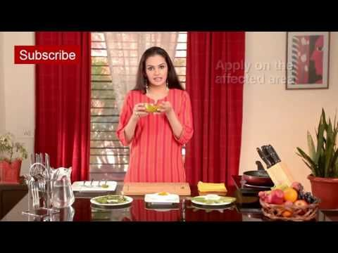 Eczema - Home Remedies For Dermatitis | Natural Ayurvedic Home Remedies For Dermatitis - YouTube