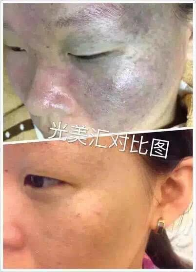 If you ignore this, you will miss. HONKON Q-SWITCH ND;YAG laser for cleaning skin depply, acne removal and whitening the skin . wanna this?
