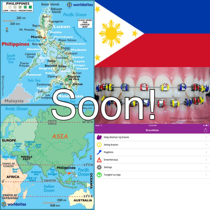 With the help of Dr Pam Fabie @dentalbracesphilippines the BraceMate app will soon have #Filipino #Tagalog #Philippines #philippines🇵🇭 #Manila #Cebu #braces #ortodontista #ortodontia #orthodontist #orthodontics #colours #colours #smile #smiles #smile😊 #dental #dentist #dentistry #app #ipad #android #apple