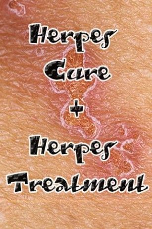 Whenever you hear somebody discussing herpes the first thing that'll cross your mind is how difficult is always to find a herpes cure that really works. Nevertheless, you must realize that there are various types of herpes and that a treatment for herpes will normally vary according to the kind of the HSV virus that caused the infection. To assist you better understand this type of infection, I've ...