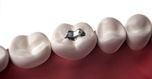 Amalgámové verzus biele porcelánové plomby na pokazené zuby