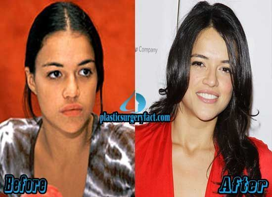 Michelle Rodriguez Plastic Surgery Before and After   plasticsurgeryfac… – rep…