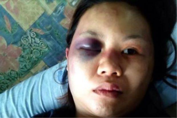 Wanita dipukul suami selepas gambar bayi mereka ditag dengan nama lelaki lain